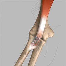 Biceps Tendon Tear at the Elbow