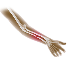 Forearm Fractures in Children
